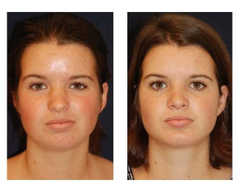 Chin Lipo before 346991