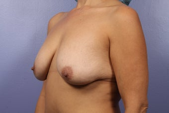 Mommy Makeover- Breast Augmentation before 466147