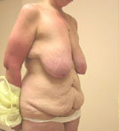 Breast Reduction Surgery and Tummy Tuck before 152005