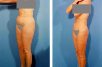 Liposuction before 636107