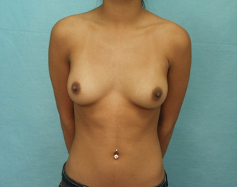 Augmentation Mammoplasty before 259503