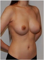 Breast Implants - Silicone after 226202