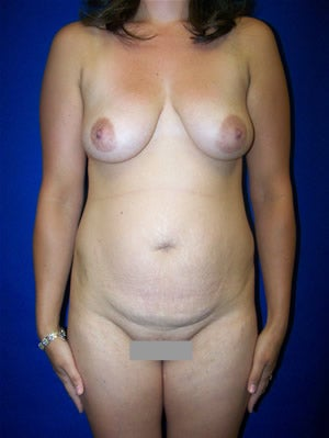 Tummy Tuck Surgery (abdominoplasty) with Breast Augmentation before 142016