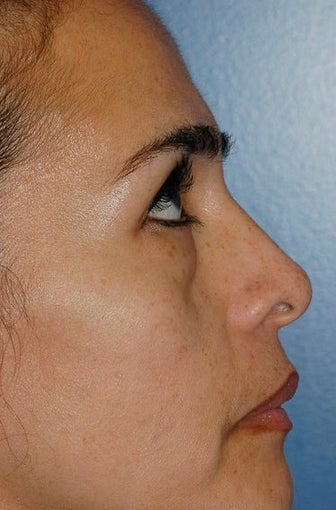 Lower lid blepharoplasty and Fat Transfer to lower lids and midface 307123