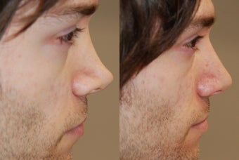 Non-Surgical Rhinoplasty with Silikon-1000 for permanent results. before 216828