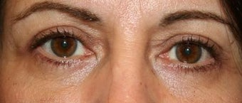 Upper Lid Blepharoplasty after 106037
