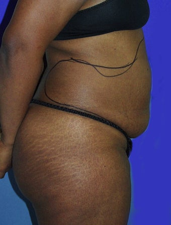 Abdominal liposuction before 135026