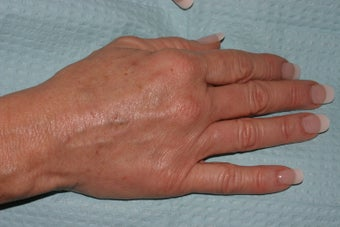 Sclerotherapy for hand veins after 140325