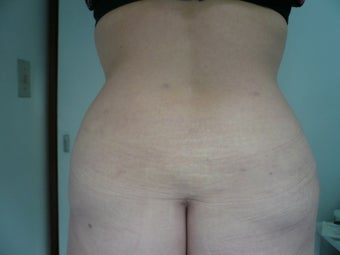 Smartlipo / liposuction after 166268