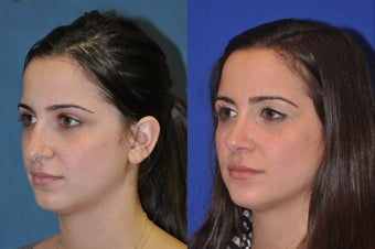 Rhinoplasty before 256039