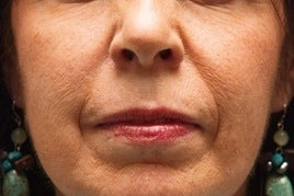 Sculptra before 346266