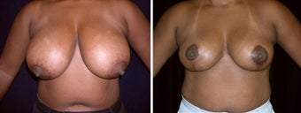 40 year old female, breast reduction before 630931
