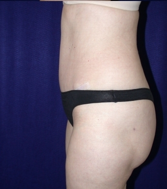 Tummy Tuck (abdominoplasty) 208465