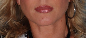 Lip Augmentation with Juvederm after 370380