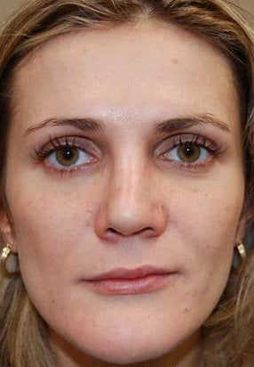 Silikon-1000 for lip augmentation and non-surgical nose job with IPL PhotoFacial after 95162