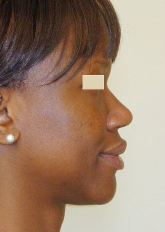 African-American Rhinoplasty before 104227
