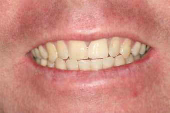 Porcelain Veneers/ Smile Makeover before 343714