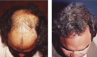 hair transplant after 369170