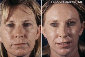Laser Resurfacing before 106311