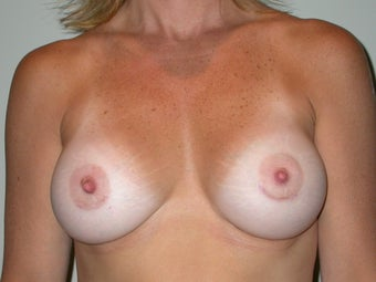 Breast Augmentation after 611768