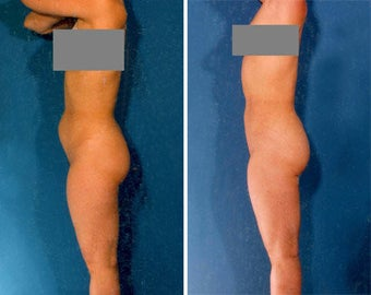 Liposuction before 636119