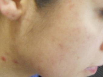 Severe Acne - Photodynamic Treatment