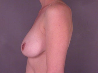 Breast Lift before 321466