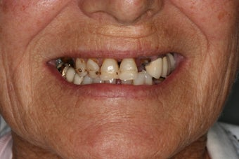 Implant supported overdentures before 480893