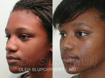 African American Rhinoplasty after 374013