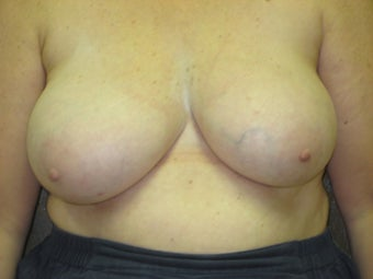 liposuction reduction of breasts before 223489
