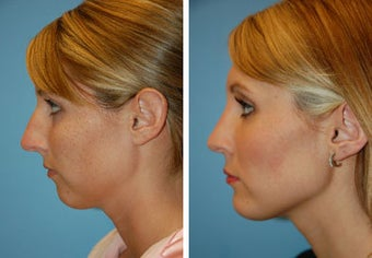 Chin Implant, Rhinoplasty before 91943