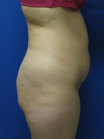 Abdominoplasty  343059