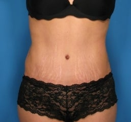 Abdominoplasty after 464709