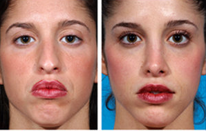 Rhinoplasty and Chin Implant before 6673