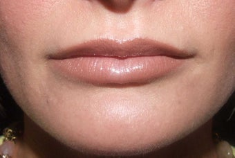 Lip augmentation after 111554
