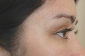 Latisse for eyelashes after 151333