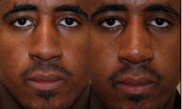 African-American Rhinoplasty before 115425