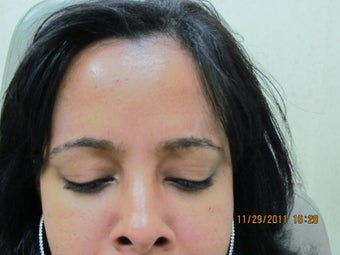 Botox for Frown Lines after 421668