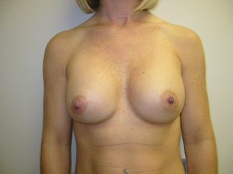 Breast Augmentation after 275986