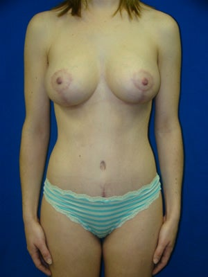 Tummy Tuck Surgery (Abdominoplasty), Breast Lift with Implants after 160908