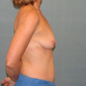 Breast lift 334360