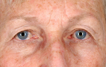 Upper Lid Blepharoplasty before 555133