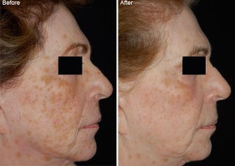 Fraxel Laser Resurfacing before 97773