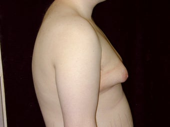 Gynecomastia Reduction Surgery before 238729