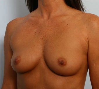 Breast Augmentation before 260148
