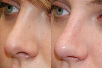 Non-Surgical Rhinoplasty. 3/4 view. before 170673