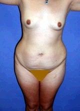 Tummy Tuck (Abdominoplasty), Mommy Makeover before 394835