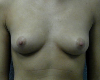 Breast augmentation before 409968