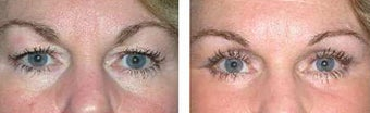 Upper and Lower Laser Blepharoplasty before 69361