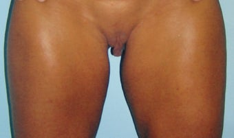 Labiaplasty before 602125